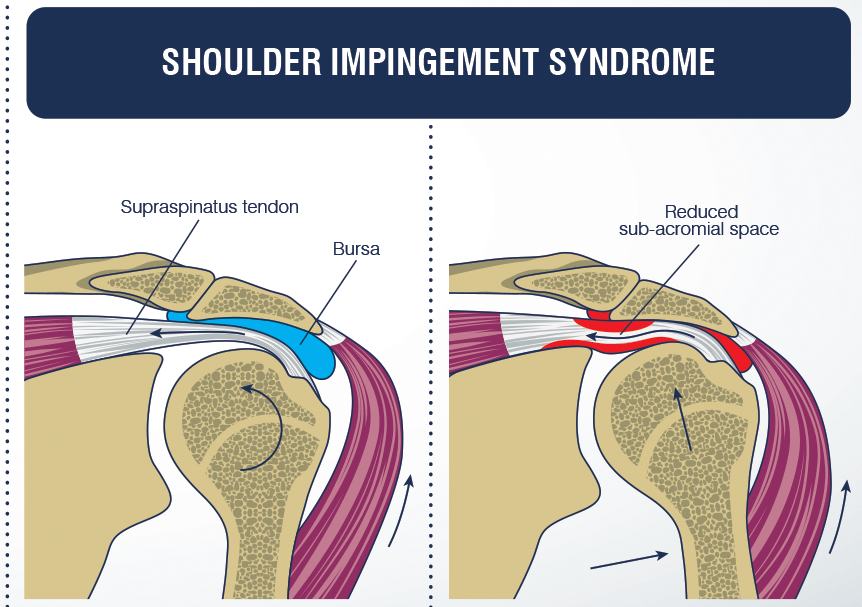 Anterior shoulder pain, Subacromial pain syndrome or Subacromial impingement